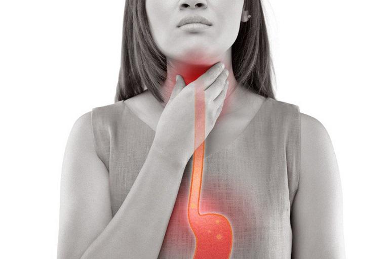Hình minh hoạt về bệnh trào ngược dạ dày
