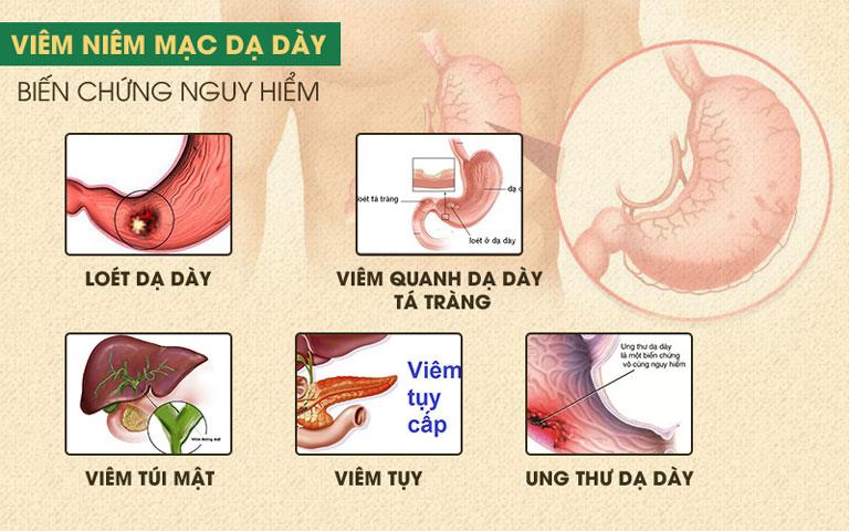 Những biến chứng nguy hiêm của bệnh viêm dạ dày