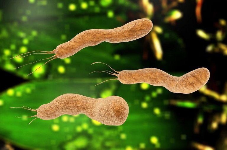 Vi khuẩn HP - tác nhân chính gây bệnh dạ dày