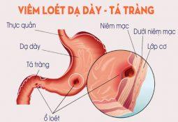 Viêm loét dạ dày tá tràng căn bệnh phổ biến ở đường tiêu hóa