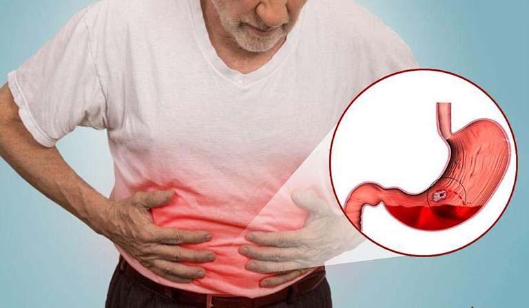 Xuất huyết dạ dày có thể gặp ở nhiều lứa tuổi