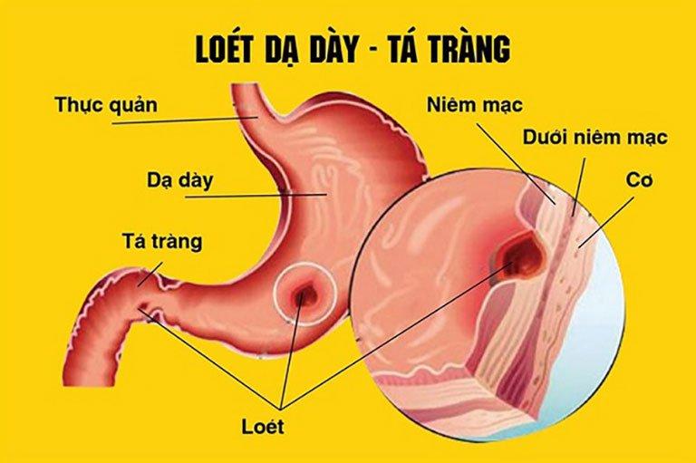Ợ hơi có thể là biểu hiện của bệnh viêm loét dạ dày- tá tràng