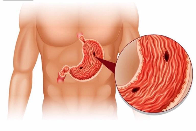 Thủng dạ dày xảy ra khi lớp niêm mạc dạ dày bị tổn thương nghiêm trọng
