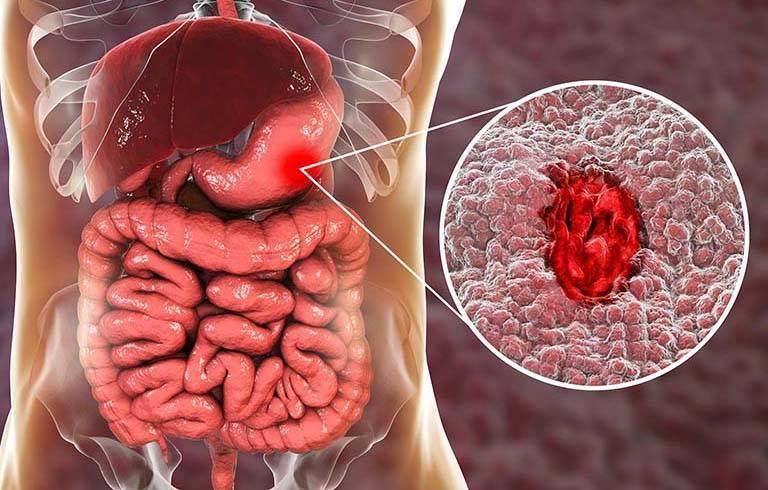 Xuất huyết bao tử là tình trạng dạ dày bị chảy máu