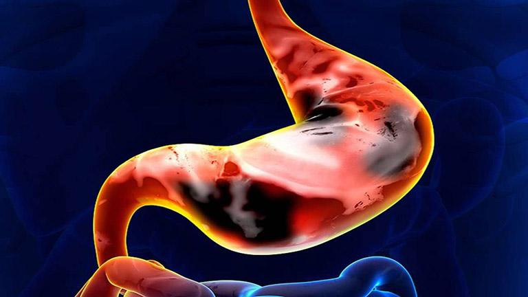 Ưng thư dạ dày là bệnh nguy hiểm ở đường tiêu hóa gây ra các cơn đau âm ỉ, dữ dội