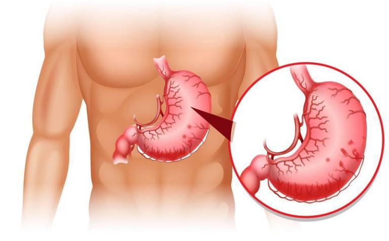 Vị trí của dạ dày trên cơ thể