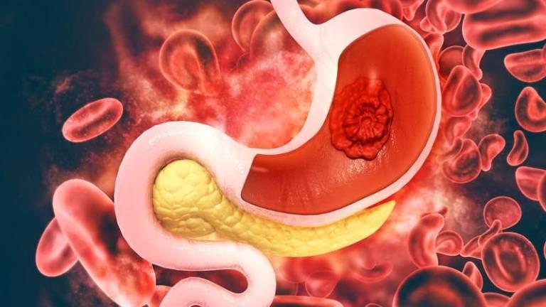 Ưng thư dạ dày là cấp độ nguy hiểm nhất của đau dạ dày